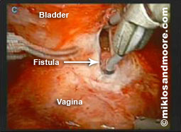 Picture 1--shows opening the fistula tract with the bladder above and the vagina below